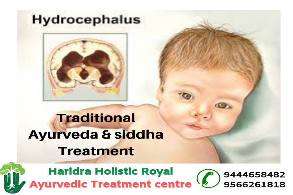 hydrocephalus treatment
